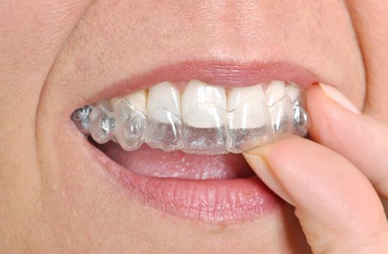 photodune-7779075-invisible-braces--xs